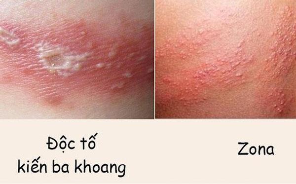 Vết tổn thương do kiến ba khoang cắn